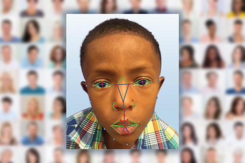 Facial Recognition used to detect genetic diseases